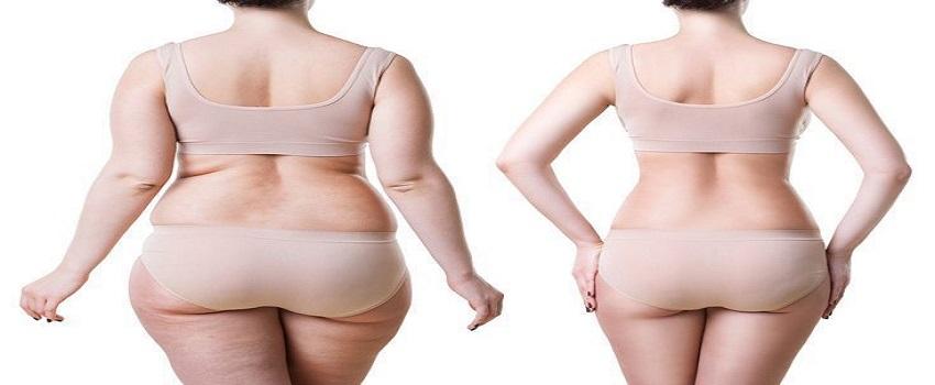 Bodytite Liposuction in Islamabad, Rawalpindi & Pakistan
