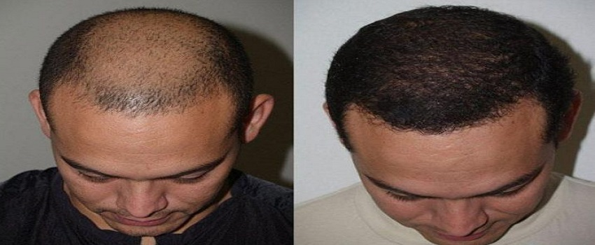 What Is The Best place to Get Hair Transplant in Islamabad