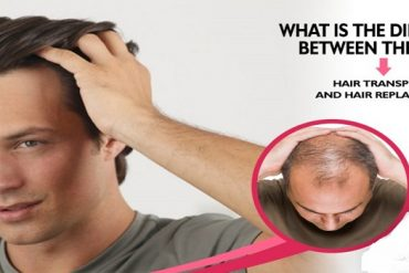 How to Get Satisfactory Hair Transplant Results