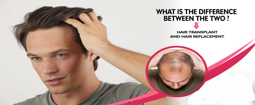 between Hair Transplant and Hair Replacement