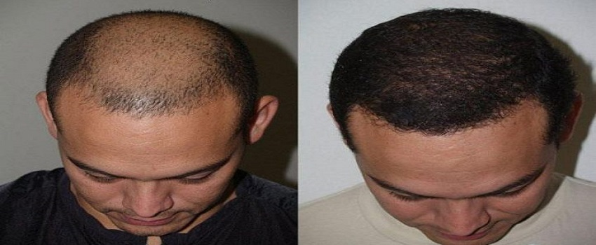 Cheap And Best Hair Transplant In Islamabad Pakistan