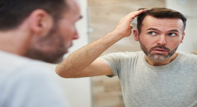 Which Hair Transplant Technique Is Best in Pakistan