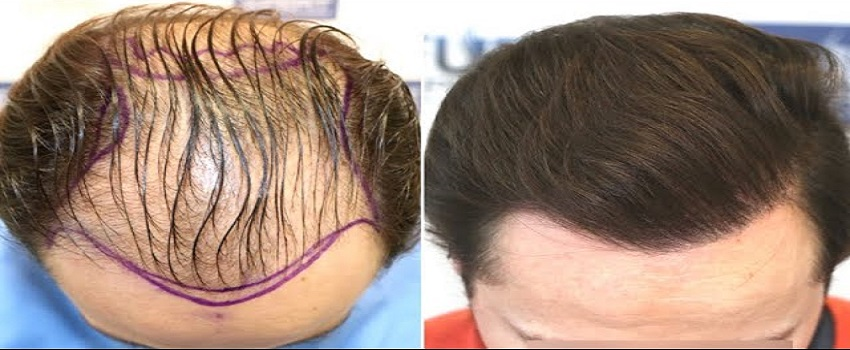 Why Are Hair Transplants Expensive In Pakistan
